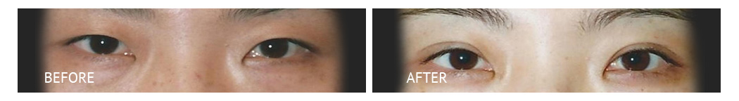 The Eyelid Surgery Center Best cost Eyelid Surgery Makati Manila philippines before and after near me#12