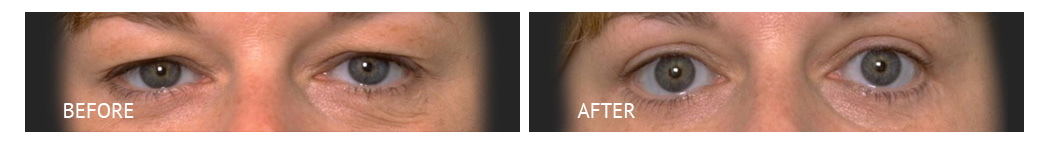 The Eyelid Surgery Center Best cost Eyelid Surgery Makati Manila philippines before and after near me#14