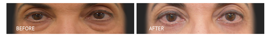 The Eyelid Surgery Center Best cost Eyelid Surgery Makati Manila philippines before and after near me#15