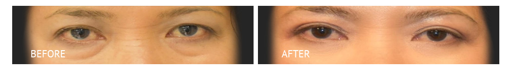 The Eyelid Surgery Center Best cost Eyelid Surgery Makati Manila philippines before and after near me#16