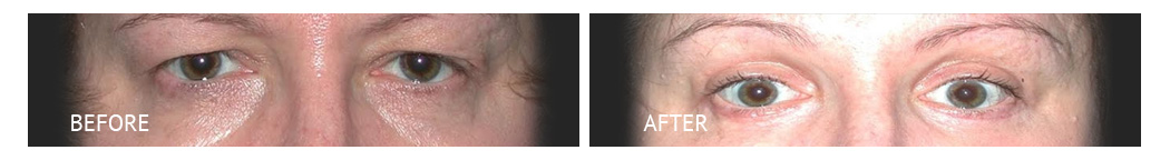 The Eyelid Surgery Center Best cost Eyelid Surgery Makati Manila philippines before and after near me#17