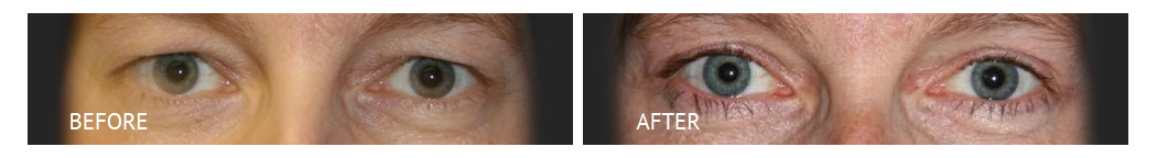 The Eyelid Surgery Center Best cost Eyelid Surgery Makati Manila philippines before and after near me#18
