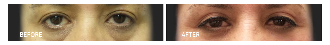 The Eyelid Surgery Center Best cost Eyelid Surgery Makati Manila philippines before and after near me#19