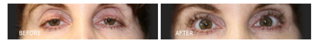 The Eyelid Surgery Center Best cost Eyelid Surgery Makati Manila philippines before and after near me#2