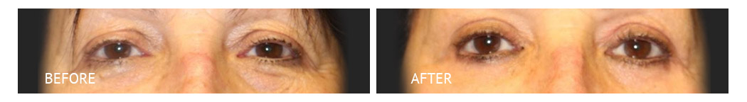 The Eyelid Surgery Center Best cost Eyelid Surgery Makati Manila philippines before and after near me#20
