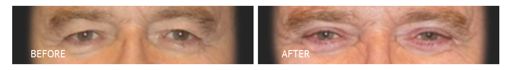 The Eyelid Surgery Center Best cost Eyelid Surgery Makati Manila philippines before and after near me#3