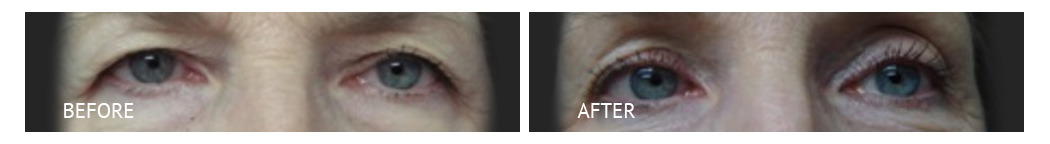 The Eyelid Surgery Center Best cost Eyelid Surgery Makati Manila philippines before and after near me#4