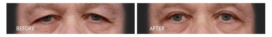 The Eyelid Surgery Center Best cost Eyelid Surgery Makati Manila philippines before and after near me#5