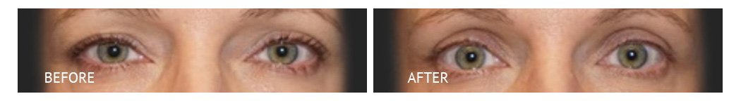 The Eyelid Surgery Center Best cost Eyelid Surgery Makati Manila philippines before and after near me#6