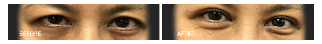 Eyelid Surgery Cost, Double Eyelid Surgery Philippines