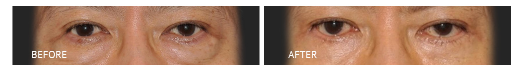 The Eyelid Surgery Center Best cost Eyelid Surgery Makati Manila philippines before and after near me#9