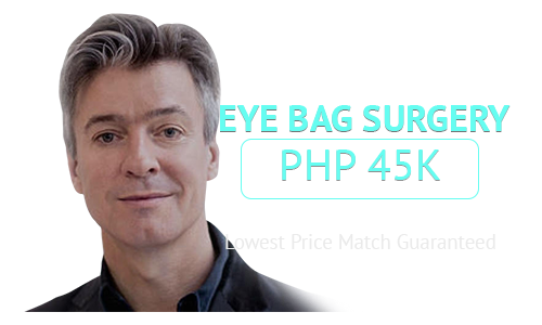 eye bag surgery cost philippines